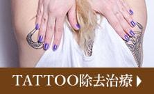 刺青除去治療